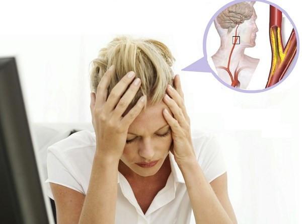 Đau đầu là triệu chứng rối loạn hoạt động não bộ, tăng nguy cơ đột quỵ.