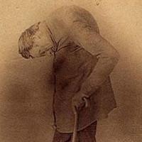 Người đàn ông cằm chạm ngực trở thành bí ẩn y học