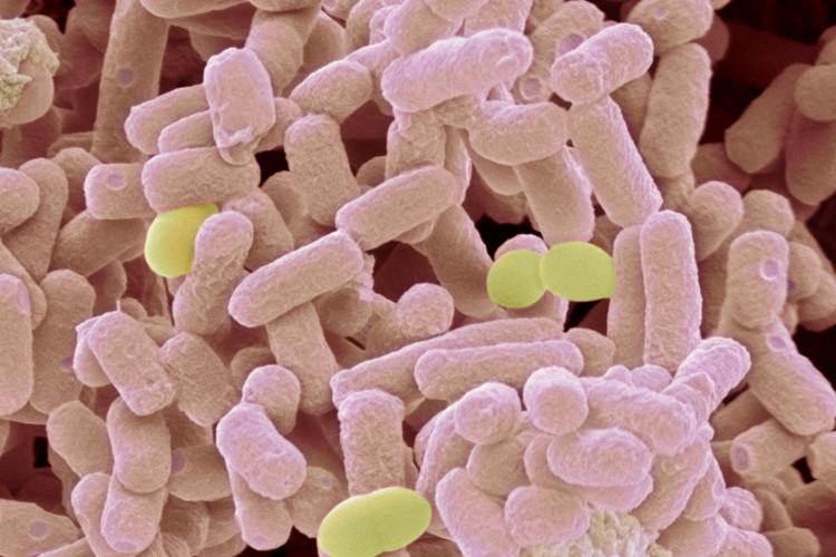 Loại siêu khuẩn mới này có thể kháng lại cả carbapenems - nhóm kháng sinh mạnh nhất.