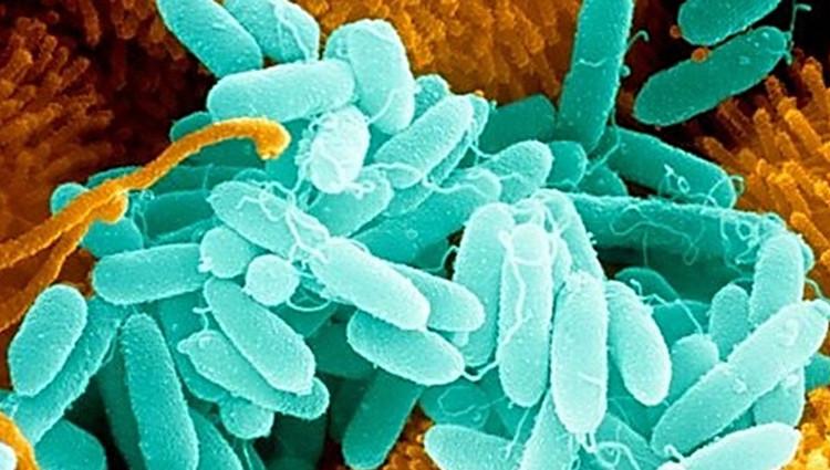 Trực khuẩn mủ xanh, thứ đã hiện diện trong lồng ngực bác sĩ Khodadoust.