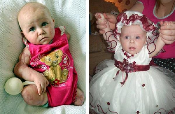 Bé Lillie trước và sau khi mắc căn bệnh lạ