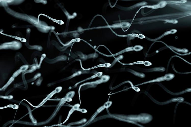 Thiểu năng tinh trùng chiếm đa số các nguyên nhân gây vô sinh nam.