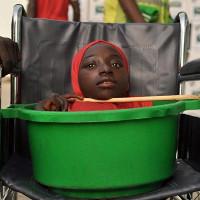 """""""Cô gái Sọ Dừa"""" ở Nigeria đã qua đời đúng ngày lễ Giáng sinh"""