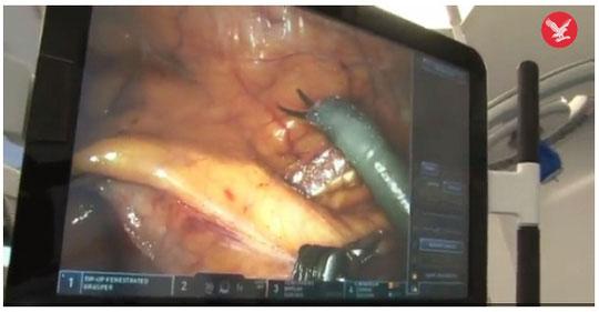 Các bác sĩ phẫu thuật cắt bỏ khối u trong buồng trứng cho bệnh nhân.