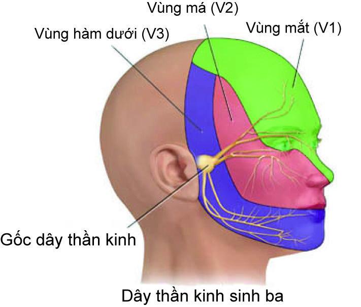 Chúng ta có thể nói rằng tất cả những cơn đau đầu đều do sự thay đổi trong hoạt động của hệ thần kinh sinh ba