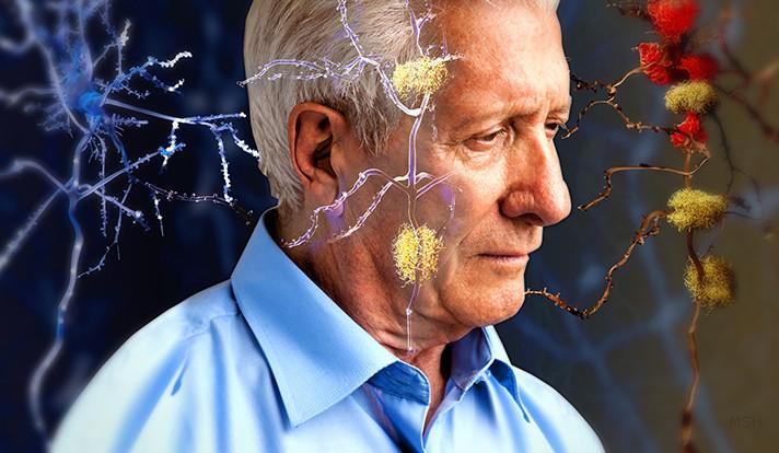 Hiện nay khoa học vẫn chưa hiểu rõ nguyên nhân và tiến triển của bệnh Alzheimer.