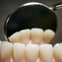 Loại thuốc chữa sâu răng mà không cần phải hàn răng