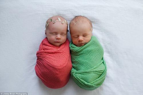Các bác sĩ cho biết họ nhận thấy tim của William đã có vấn đề khi bé còn trong bụng mẹ ở tuần thứ 23 của thai kỳ.