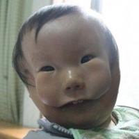 Mắc dị tật cực hiếm, em bé mang hai khuôn mặt