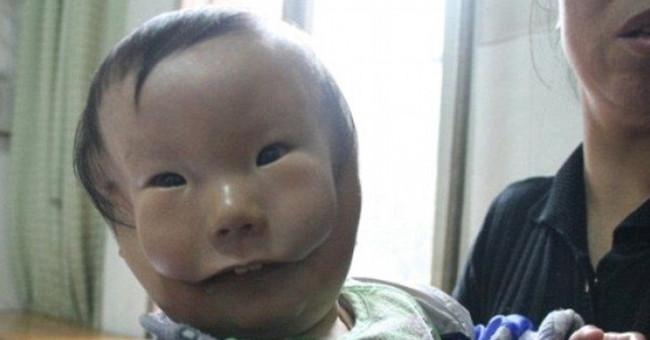 Sức khỏe đời sống-Mắc dị tật cực hiếm, em bé mang hai khuôn mặt
