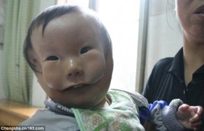 Bé Huikang bị nứt cơ ngang mặt tạo thành 2 khe lớn kéo từ miệng lên mang tai.