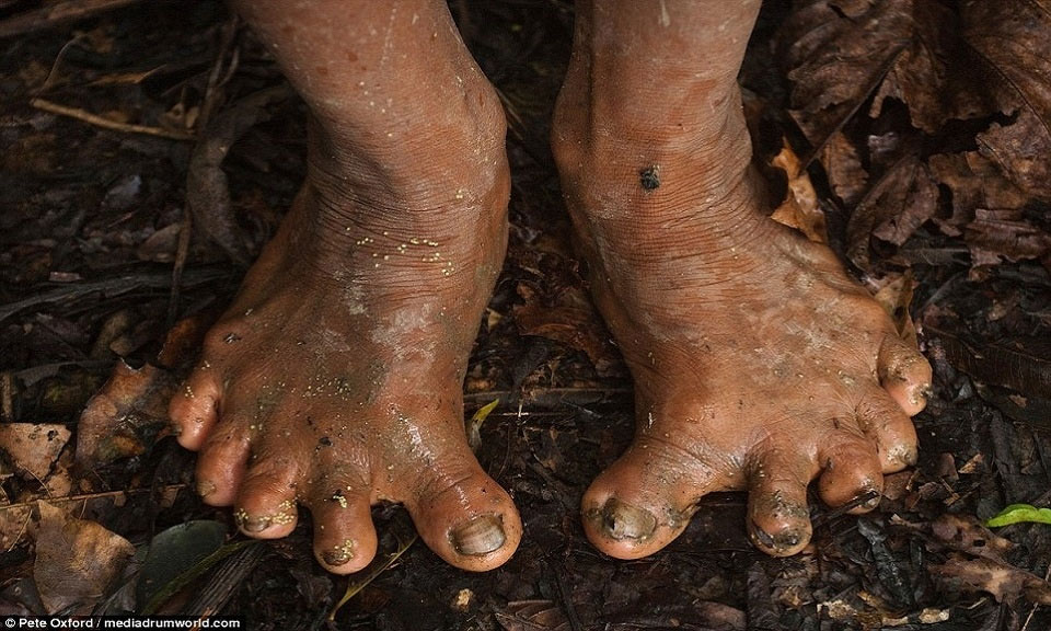 Nhiều người trong bộ tộc Huaorani có bàn chân dẹt, bàn chân và bàn tay có 6 ngón, đặc điểm giúp họ trèo cây tài tình.