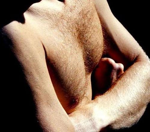 Cơ thể sản xuất nhiều testosterone nhiều hơn thì có lông rậm hơn.