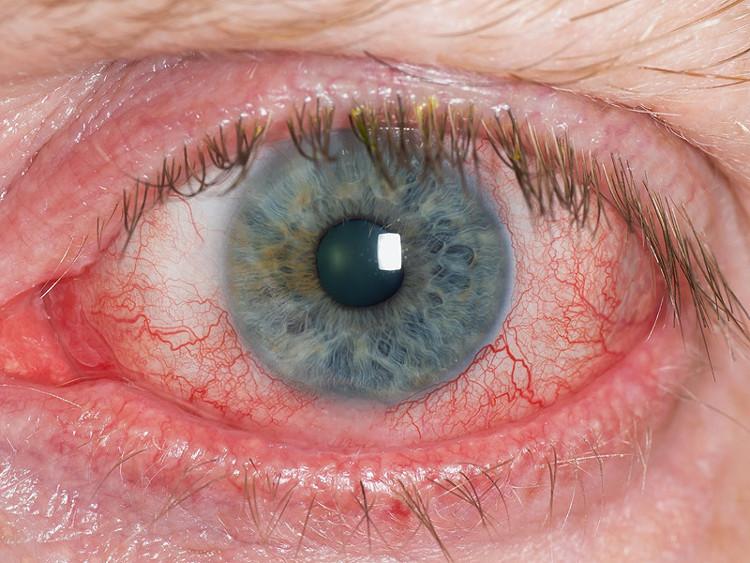 Đây là hình ảnh của một con mắt bị khô.