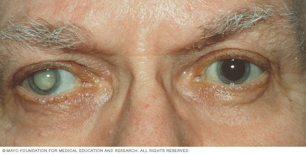 Đục thủy tinh thể có thể được chữa trị bằng phẫu thuật