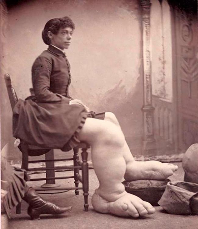 Fanny Mills - người phụ nữ chân to