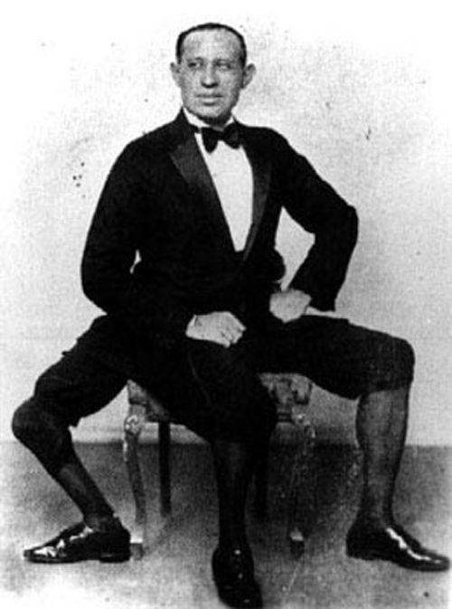 Francesco Lentini - người đàn ông 3 chân