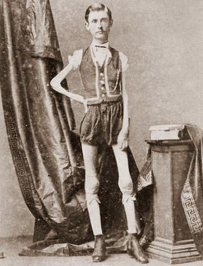Isaac Sprague - bộ xương di động