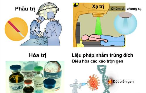Các phương pháp điều trị ung thư.
