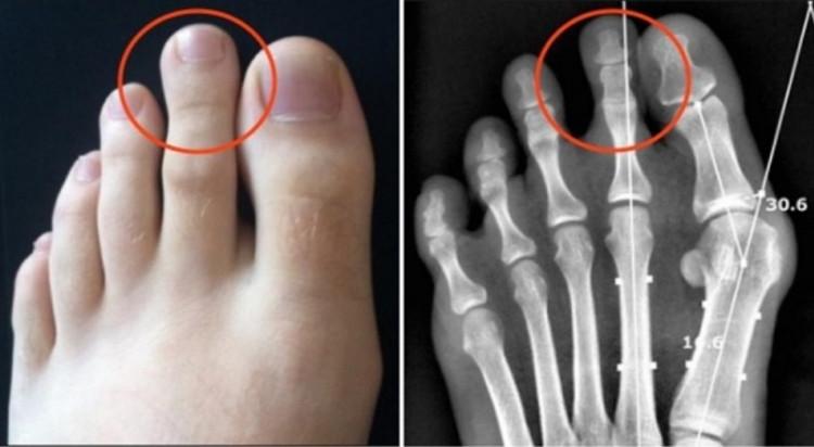 Thuật ngữ dành cho những người có ngón chân đặc biệt này là hội chứng Morton.