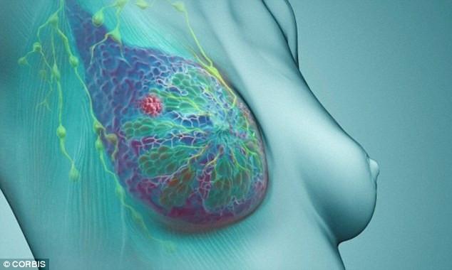 Ung thư vú có thể được phát hiện nếu chị em tự giác sờ nắn kiểm tra vùng núi đôi của mình.