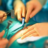 Phẫu thuật thắt dạ dày giúp điều trị bệnh tiểu đường tuýp 2
