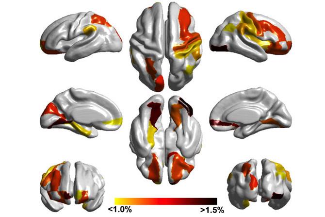 Trẻ tự kỷ có diện tích bề mặt và khối lượng não lớn hơn bình thường.