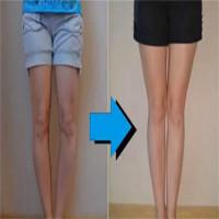 Chân cong biến thành chân thẳng: Hoá ra người ta đã phải chịu đau đến thế này đây