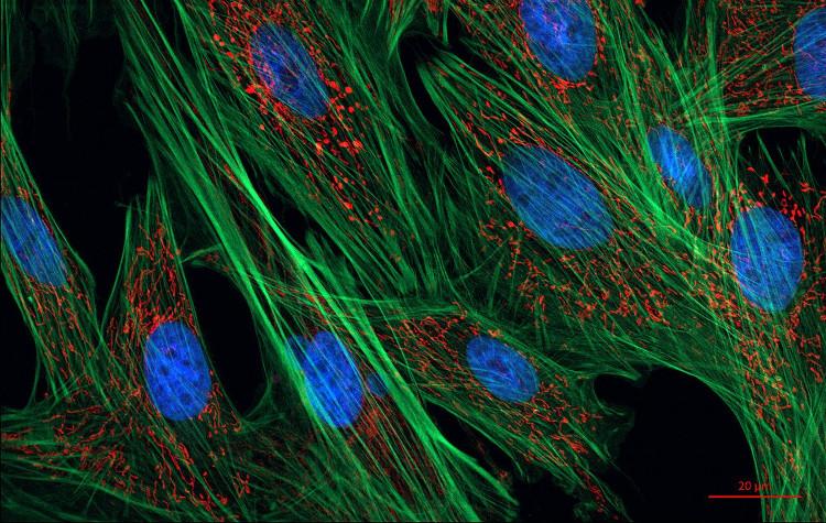Các tế bào fibroblast.