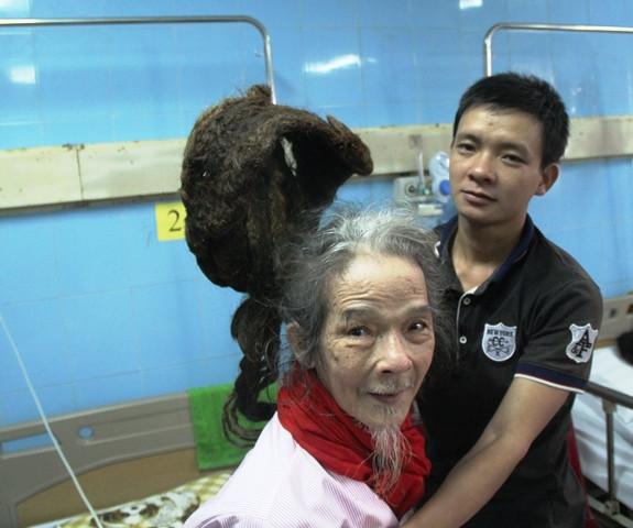 Dù sức khỏe yếu nhưng cụ ông vẫn nhất quyết không chịu cắt tóc.