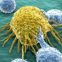 Giải đáp những thắc mắc phổ biến về ung thư