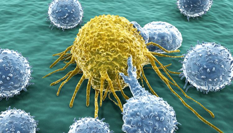 Yếu tố bên ngoài làm cho số lượng người mắc bệnh ung thư ngày càng gia tăng.