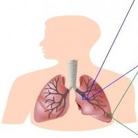 Ứng dụng tế bào gốc trong điều trị bệnh phổi tắc nghẽn mãn tính