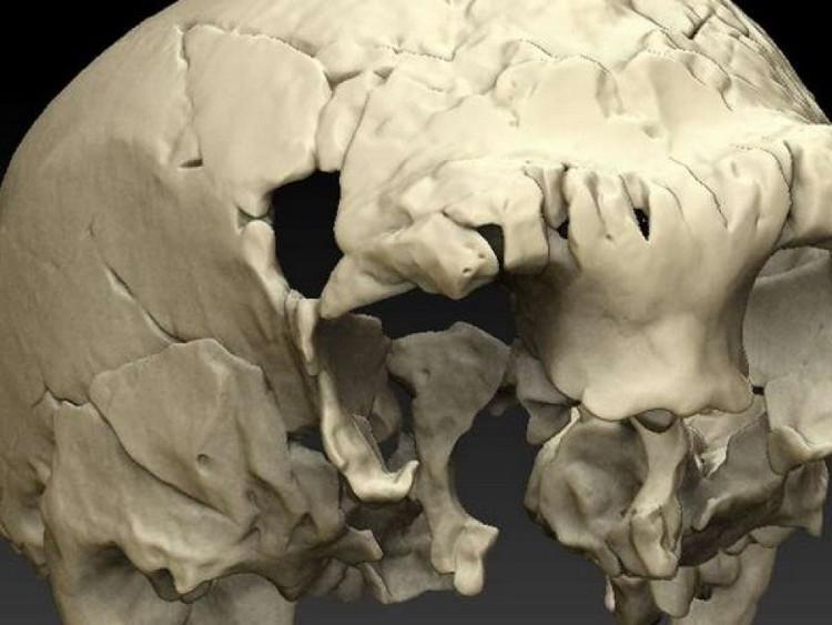 Hóa thạch hộp sọ 400.000 năm tuổi được tìm thấy tại khu vực hang động Aroeira.
