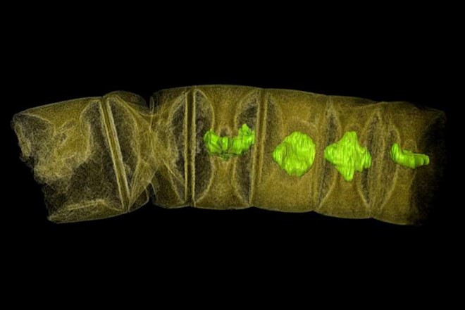 Ảnh chụp tia X hóa thạch giống tảo đỏ.