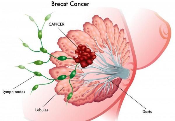 Ung thư vú là một trong những bệnh ung thư hàng đầu nên tầm soát.