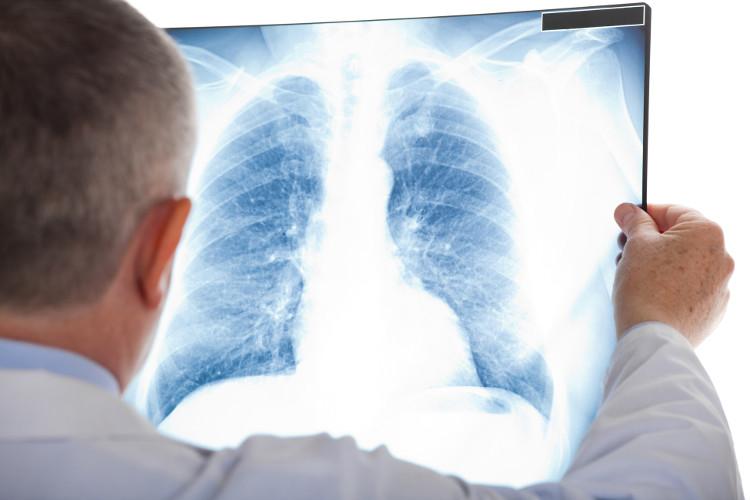 Tầm soát ung thư nhằm phát hiện ra mầm mống ung thư, hoặc khi khối u còn rất nhỏ, trước khi triệu chứng xuất hiện.