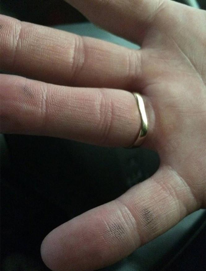 Chiếc nhẫn vàng đã bị sét đánh cong.