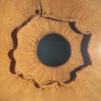 Đây là con mắt của một người, nhưng vì sao lại kỳ dị thế này?