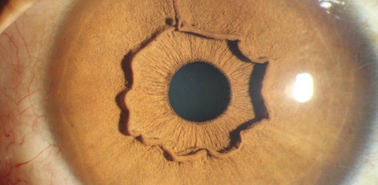 Vòng tròn kì quái bên trong mắt này từ đâu ra?