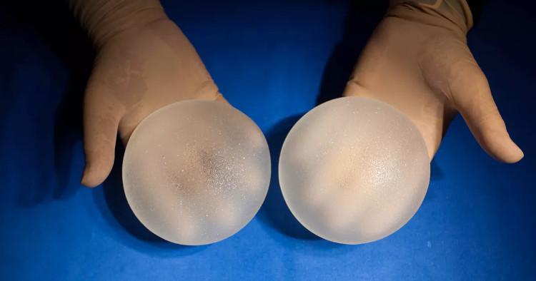 FDA xác nhận mối liên hệ rõ ràng giữa túi nâng ngực sillicon và một dạng ung thư hiếm.