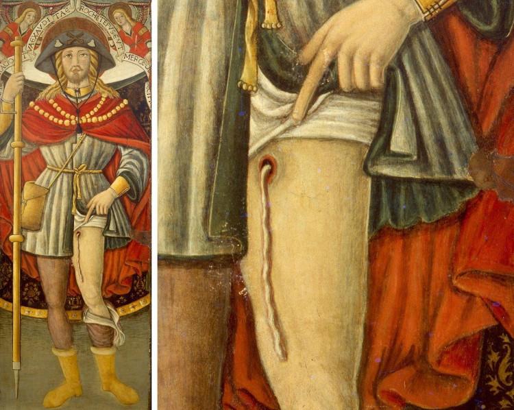 Bức tranh Trung cổ mô tả con giun chỉ chui ra từ miệng vết thương trên chân thánh Roch.