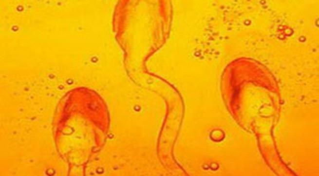 Mẫu tinh dịch khi được đưa vào phòng xét nghiệm sẽ được đặt trong tủ ấm để đánh giá sự ly giải.