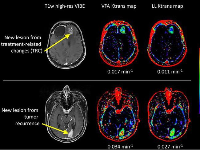 """Việc đưa thuốc vào các khối u não vốn được xem là thách thức lớn bởi sự hiện diện của """"hàng rào máu não"""""""