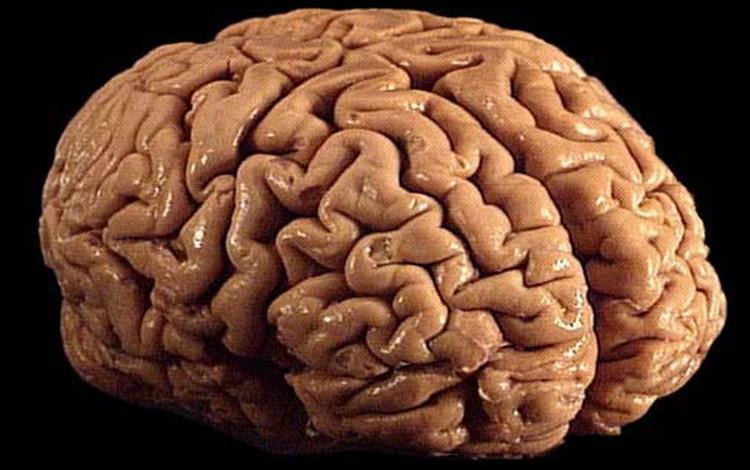 """Ô nhiễm không khí khiến lượng """"chất trắng"""" trong não có nguy cơ bị teo đi."""