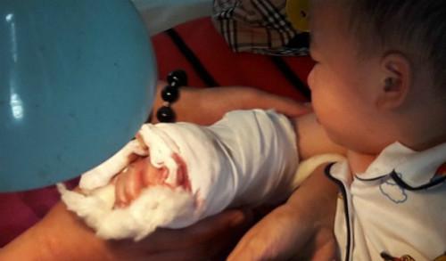 Bàn tay bé trai bì thang cuốn kẹp sau khi được bác sĩ phẫu thuật khâu nối.