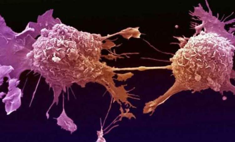 Khi điều chỉnh một dạng protein đặc biệt bên trong tế bào ung thư, quá trình tự hủy sẽ được kích hoạt.