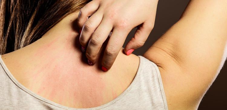 Hệ miễn dịch sẽ tập trung ở nơi bị ung thư nên khiến da bạn bị ngứa hoặc thay đổi màu sắc.