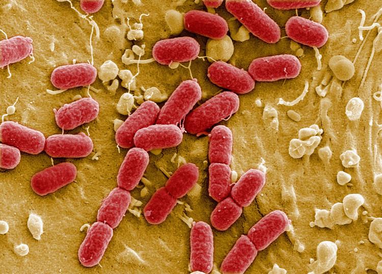 Trong một vài thập kỷ tới, nhiều loại bệnh thông thường cũng không còn thuốc chữa.