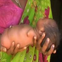 Bé gái Sọ Dừa phiên bản Ấn Độ sinh ra đã giống cục thịt không có tay chân